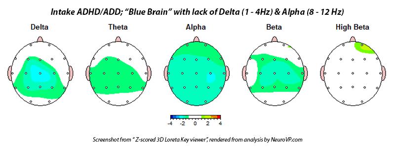 Neurofeedback ADHD ADD Blue Brain