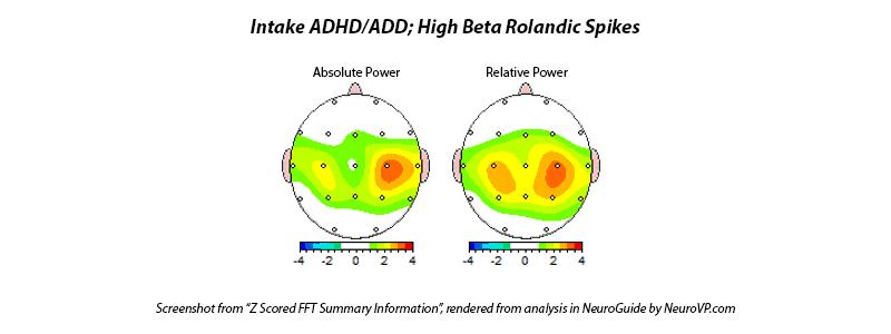 Neurofeedback ADD ADHD TDA TDAH Rolandic Spikes