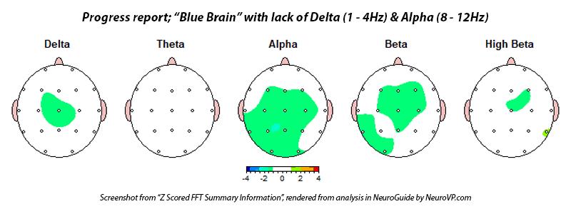 adhd add blue brain neurofeedback